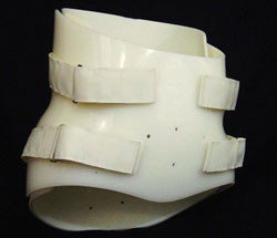 Spinal Orthoses from Northern Prosthetics